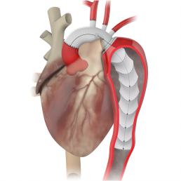 prime-surgical cardiac/vascular Medical devices